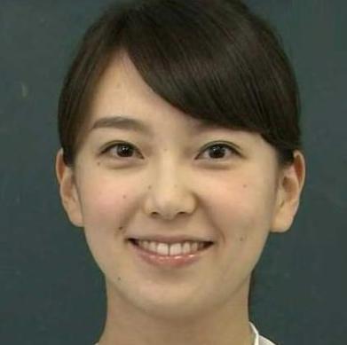 和久田麻由子のほくろは除去したほうがいい?ほくろ取ったらこんな顔