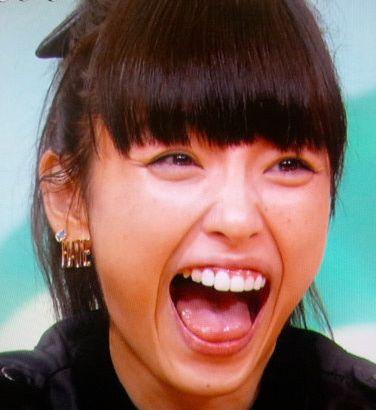 木下優樹菜の歯どこが不自然?なぜ歯が不自然だと言われるのか?